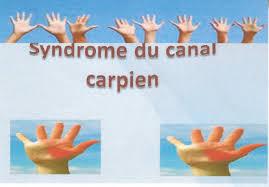 LE SYNDROME DU CANAL CARPIEN 34
